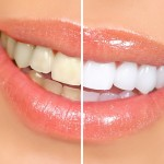 white teeth naturally