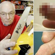 "This Man Re-Grew His Finger Using ""Pixie Dust"" and It Is Only the Beginning"