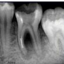 Root Canal vs. Tooth Extraction: Which is Better, and is There Another Solution?