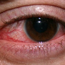 Find Natural Relief for Red, Swollen Eyes with this Chinese Herbal Remedy