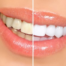 The Top Four Tips to Get White Teeth Naturally with Author Lester Sawicki, DDS