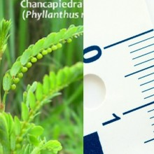 How to Dissolve Kidney Stones Naturally in 1-2 Weeks with the Amazon Herb Chanca Piedra