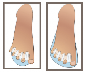 correct toes 3