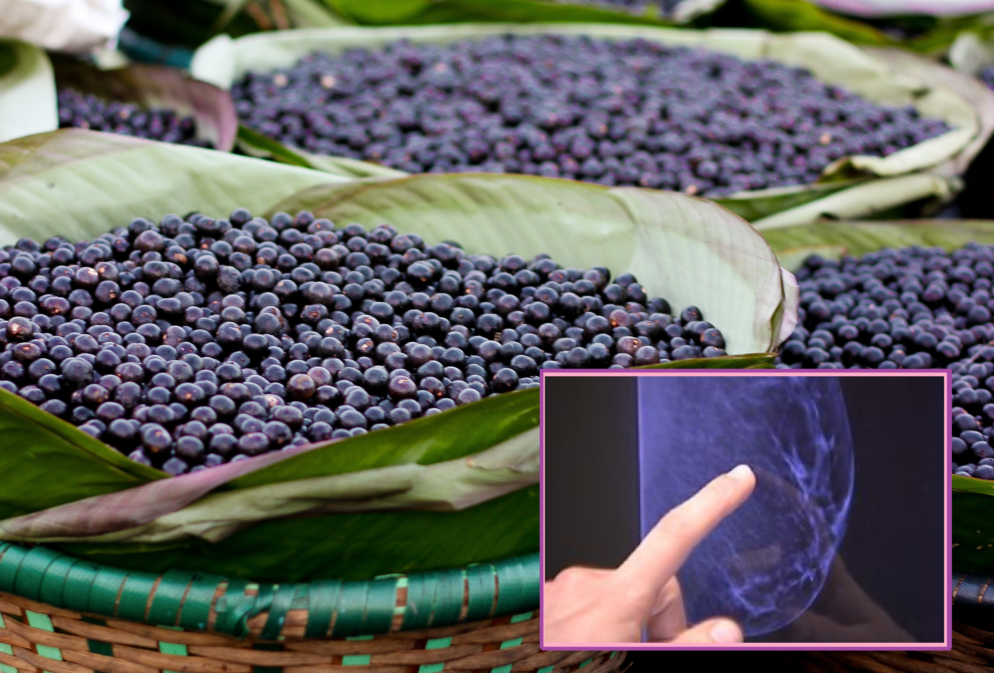 acai berry breast cancer study